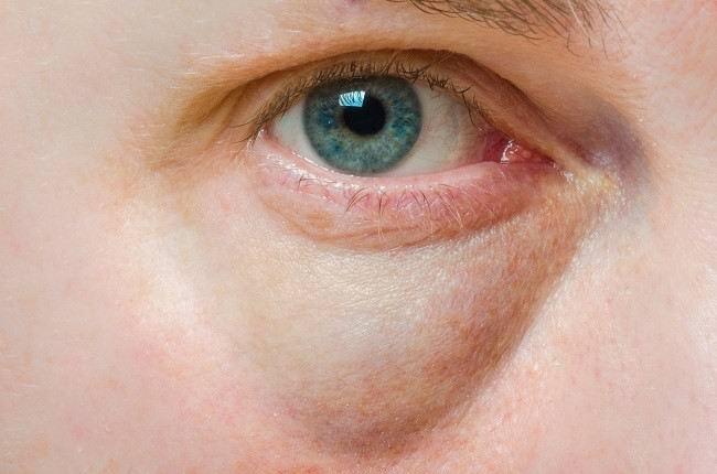 mengatasi lingkaran hitam dan kantong mata - alodokter