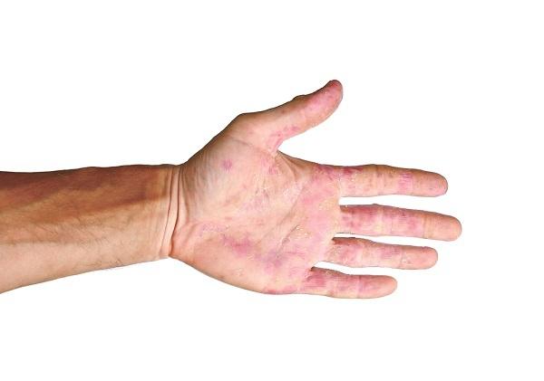 Eritema Multiformis - alodokter