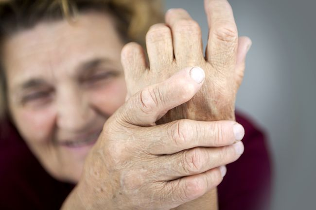 Hands Of Woman Deformed From Rheumatoid Arthritis