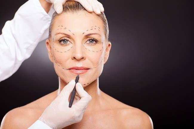 think carefully before undergoing plastic surgery - alodokter