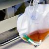 Alat Bantu Kateter Sebagai Solusi Inkontinensia Urine