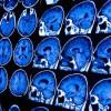 Cari Tahu Informasi tentang Batang Otak dan Masalahnya