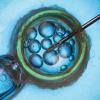 Perbedaan IVF dan IUI