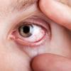 Kotoran Mata, Ketahui Penyebab dan Cara Aman Membersihkannya