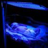 Manfaat Fototerapi untuk Bayi Kuning