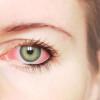 Gunakan Obat Mata Merah Berdasarkan Penyebabnya