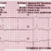 Interpretasi EKG Elektronik dapat Menyebabkan Terjadinya Kesalahan Medis