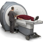 MRI Dapat Membantu Identifikasi Penyakit