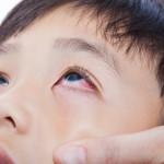 Keluhan Mata Gatal Akibat Alergi