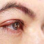 Cari Tahu Penyebab Dasar Mata Bengkak Sebelum Mulai Diobati