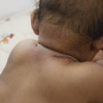 Bunda, Ini Dia Cara Mengatasi Biang Keringat Pada Bayi