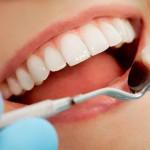 Yang Harus Dilakukan Setelah Menjalani Tambal Gigi
