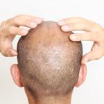 Deretan Penumbuh Rambut Alami yang Bisa Kamu Coba