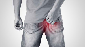 Anus Gatal Dapat Diatasi Melalui Perawatan di Rumah