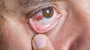 Ini Penyebab Mata Berdarah yang Perlu Diwaspadai