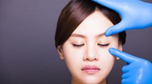 Operasi Kelopak Mata untuk Mempercantik Diri