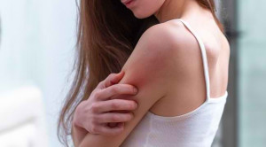 Risiko Penyakit Serius di Balik Kulit Gatal
