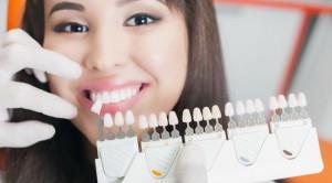 Fakta dan Cara Pemutihan Gigi