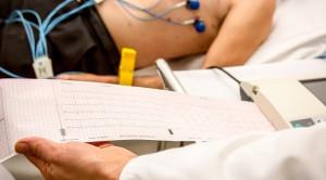 Elektrokardiografi, Ini yang Harus Anda Ketahui