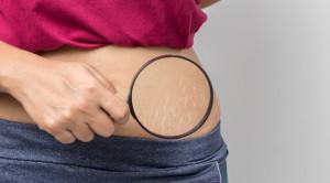 Wanita dan Fenomena Stretch Mark