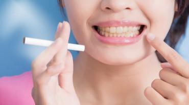 บอกลาฟันเหลือง กับหลากวิธีฟันขาว