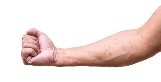 Ruam Kulit HIV Jangan Dianggap Remeh