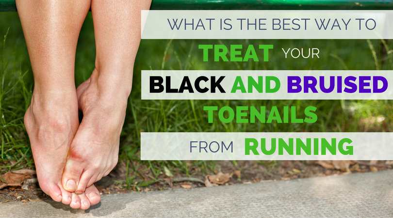 Black toenails from running are not only painful, but can end up infected or falling off. If your toenail hurts, this article will explain how common black toenails are for runners, what causes them so you can avoid black toenails in the future, and how to treat your bruised toenail correctly, so they can heal in less time.