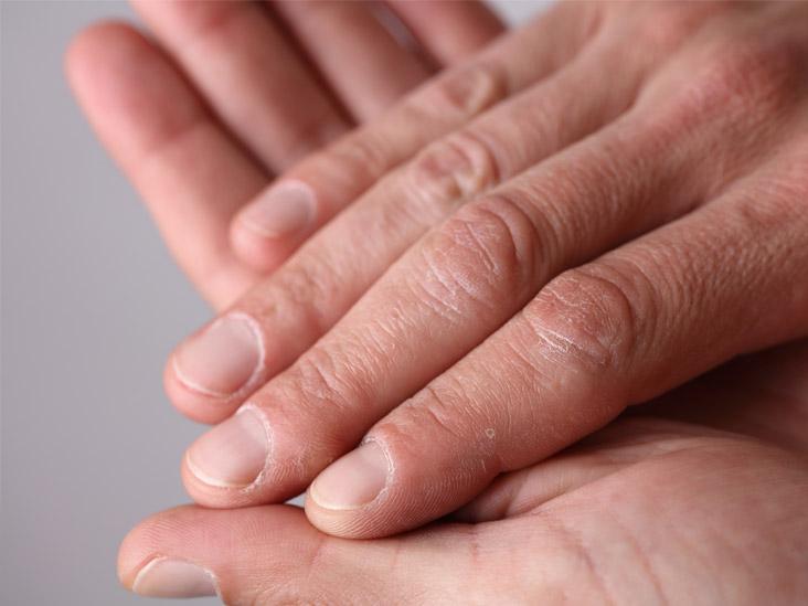 Dark horizontal lines on nails