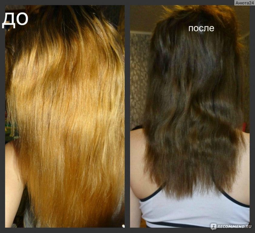 Репигментация волос