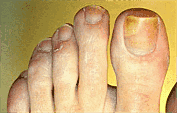 How to get rid of fungus under toenails