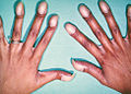 What causes clubbed nails