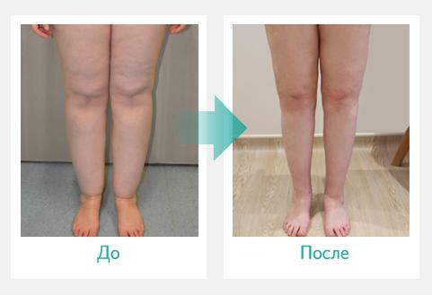 Отек рук и ног причины лечение