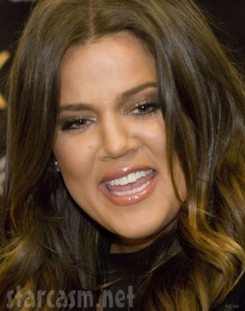 Khloe Kardashian's teeth before braces