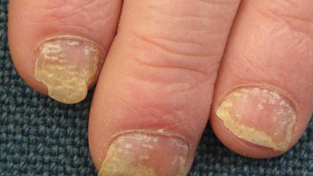 Keratin under nails