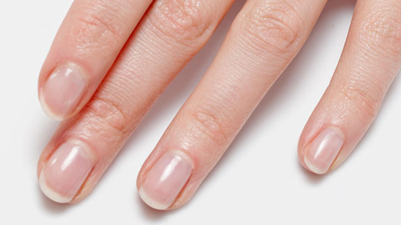 Picture of healthy nails