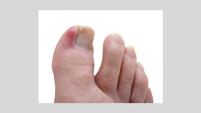 Aching toe nails