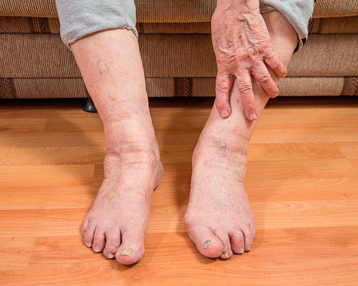 Отеки ног и лица