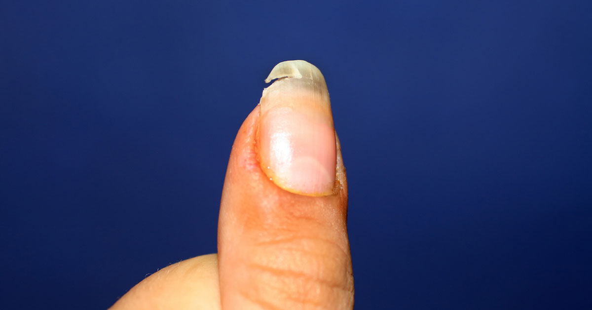 Broken fingernails causes