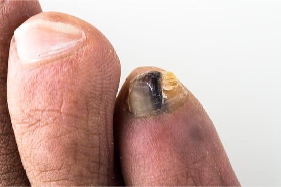 Nail polish yellow toenails