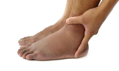Причины отеков рук и ног у женщин