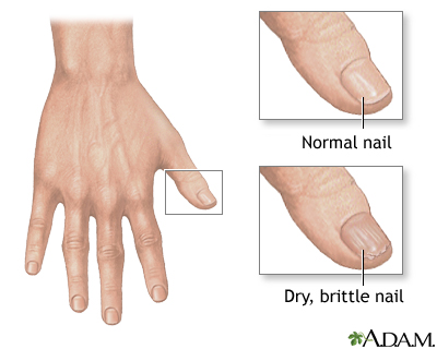 Brittle nails pregnancy symptom