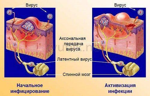 Как возникает вирус герпеса