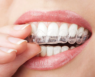 clear-dental-braces-alexandria-va