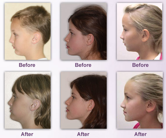 The Airway Breathing And Orthodontics additionally Not Just A Blocked Nose How Mouth Breathing Is Affecting Your Childs Growth And Development additionally Growth And Development Of Cranium And Face besides Showthread as well Ana pns. on growth and development of maxilla