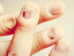 Fungal nails symptoms
