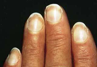 Nails and heart problems