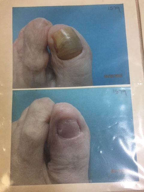 Black toenails after marathon