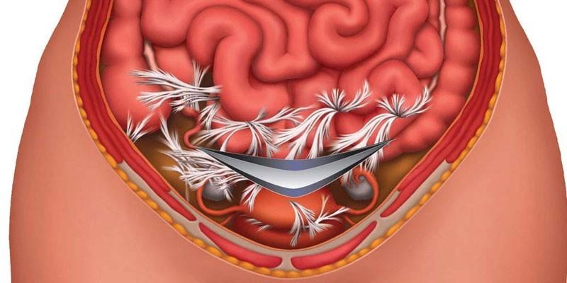 Лечение спайки кишечника народными средствами