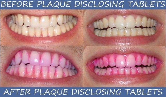 Pink dental tablets