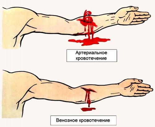 Як зупинити кров з рани: методика в домашніх умовах